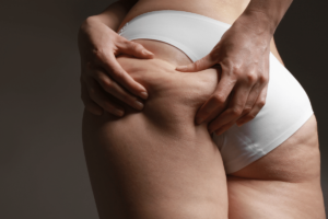 collageen cellulite